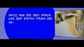 """Health program : ጤናዎ በቤትዎ """"በመንጋጋ ቆልፍ በሽታ"""" ላይ የቀረበ ውይይት  ሰኔ 07/ 2006 ዓ.ም"""